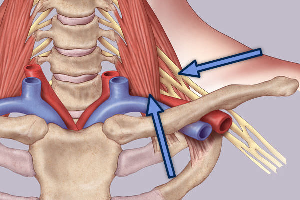 Surgical Treatment of Thoracic Outlet Syndrome-Supraclavicular Approach